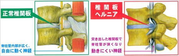 椎間板ヘルニア(側面)