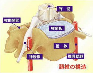 頚椎 椎間板 ヘルニア 手術