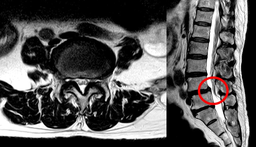 症 狭窄 脊椎 管